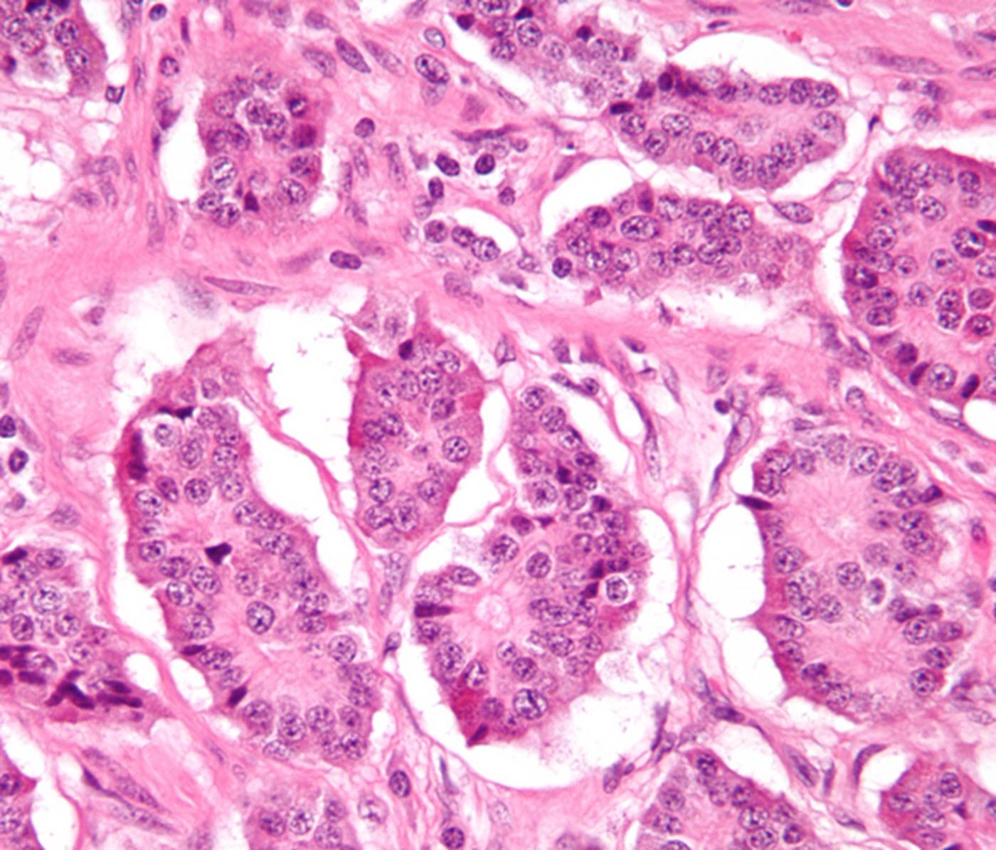 Neuroendocrine cancers